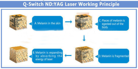 GOMECY 1064nm nd yag laser q switched tattoo removal freckle pigmentation .png