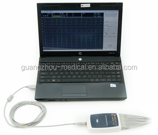 MC-8000G Laptop ECG machine price