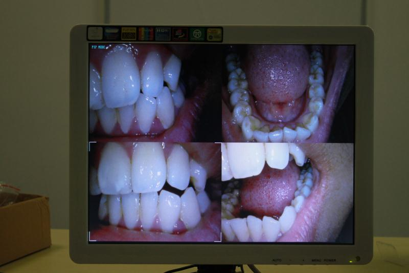 High Quality Dental Intraoral Camera With Monitor Colorful 2.0 Megapixels