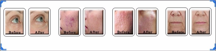2940nm er yag laser laser face lift  warts removal freckles removal cream machine in india.jpg