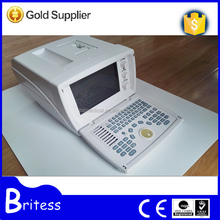 Chinese best quality B Mode Portable Ultrasound for gynaecology surgery
