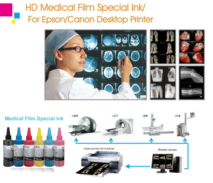 HD MEDICAL FILM SPECIAL INK FOR Epson T6731 6736 T6741 6746 T0851 T0856 T1221 T1226 T0491 T0496 T0496 T0821 T0826 T0821N T0826N