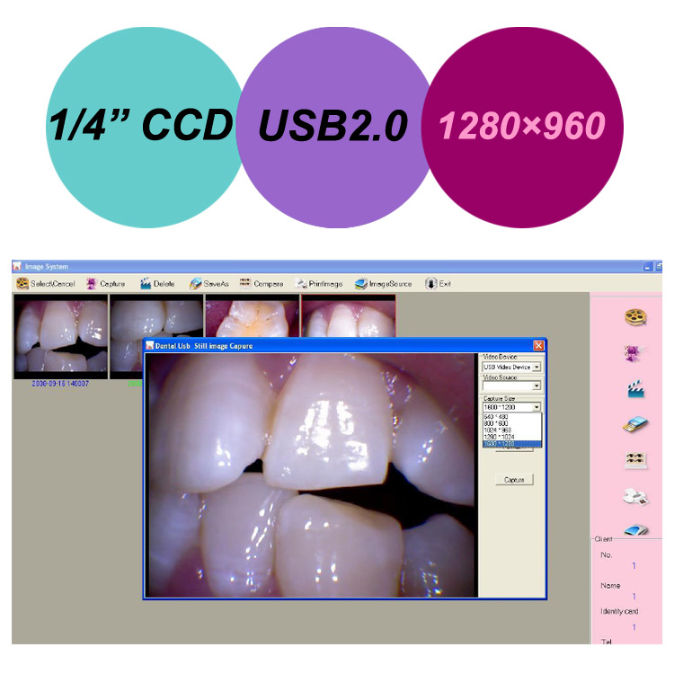 Medical Oral Cams Super Sony Ccd Wired Usb Dental Intraoral Camera Equipment
