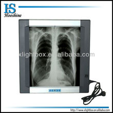 medical x ray equipment/x ray film illuminator/back lit