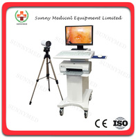 SY-F004 Electronic optical Colposcope software price