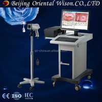 beautiful vagina colposcope camera electronic colpsocope new product digital imaging technology