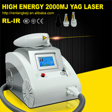 New laser tatoo removal/q switch laser for tattoo removal machine