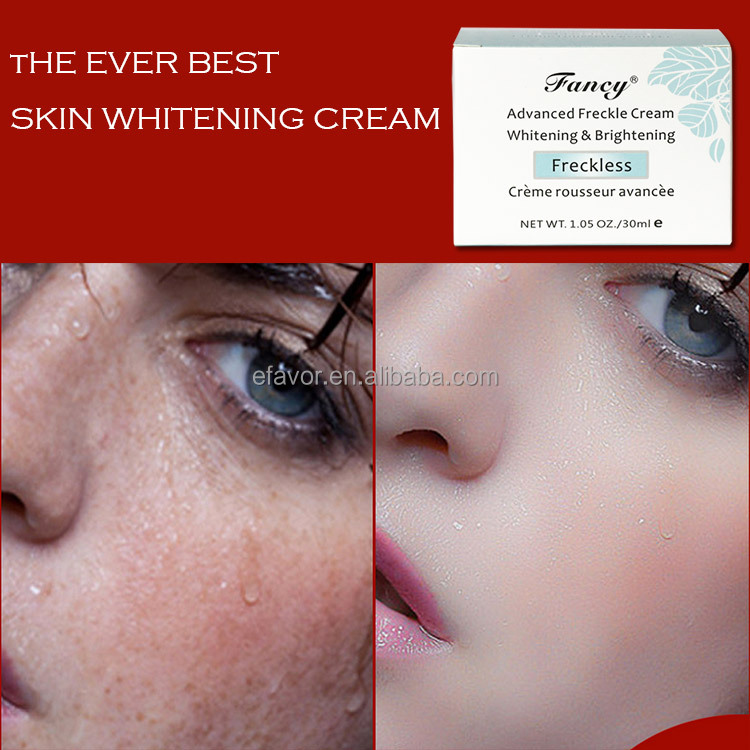 freckle treatment epiderm removal cream the miracle whitening cream