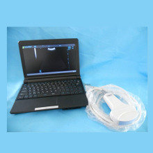 Laptop Based Fully Digital Ultrasound Unit