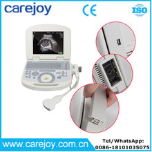 10 inch portable ultrasound scanner USG machine with 3.5Mhz convex probe for OB/GYN urology etc