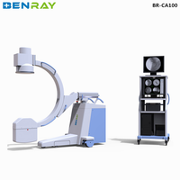 BR-CA100 mobile digital radiography c arm fluoroscopy x ray machine radiography film viewer factory