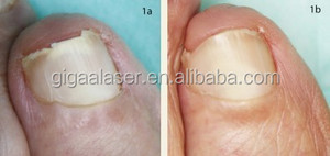 Nail fungus therapy laser cold laser laser therapy