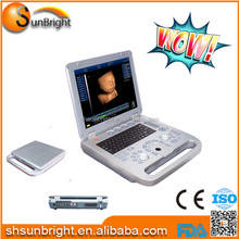 Cheap Ultrasonic Diagnostic equipment/ laptop ultrasound machine/ultrasound workstation