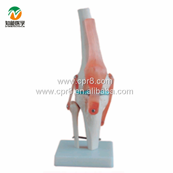 BIX-A1019 Vivid Life-size Artificial Knee Joint Model
