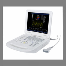 High quality 2D color doppler ultrasound machine/doppler vascular Echo Color Doppler