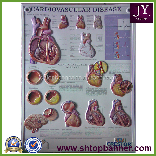 Shanghai PVC 3D Embossed Wall Medical Poster