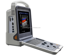 NEW portable color doppler ultrasound machine with curved array probe, linear array probe, phased array probe CW probe