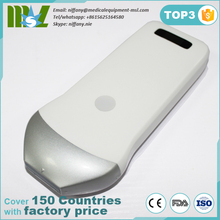 2017 most popuplar handheld ultrasound scanner/wireless US probe for home & hospital & emergency use MSLPU42