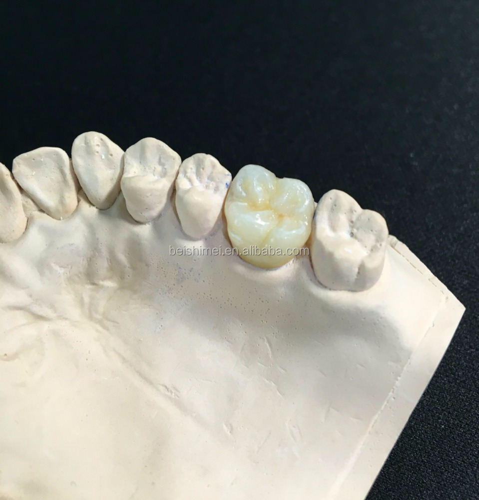 High density several layers temporary dental crown materials