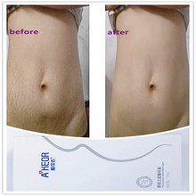 Worldwide Most Obesity Use Magic Stretch Mark Removal Cream