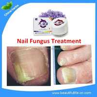 Wholesale Cream for nail fungus--Foot Care/Peeling Exfoliating Beauty Product/ Best Treatment ODM/OEM/Private label