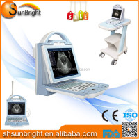 Sun-800W Digital Protable ultrasound machine, cheap ultrasound unit