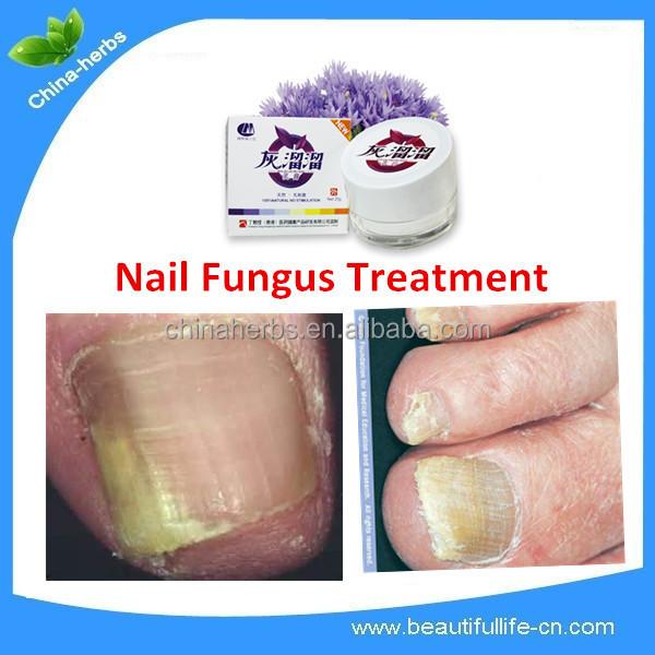 Медицинский протокол лечения грибка ногтей