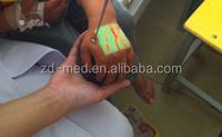 See The Vein For Nurse Doctor Machine Vein Locator
