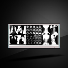 Medical x-ray film light box/ view box
