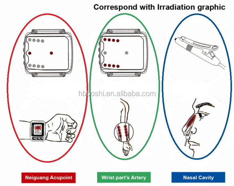 laser irradiation part