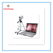 Digital Electronic Portable Colposcope System