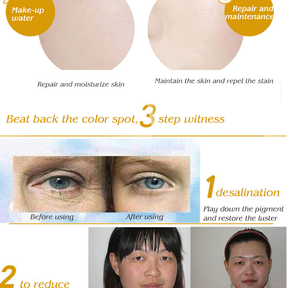 OEM skin care flaweless anti spot cream, pigmentation cream, black spots removal skin whitening set custom