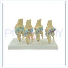 PNT-0141 2017 New Knee Joint Model Artificial Life-size Vivid for medical use