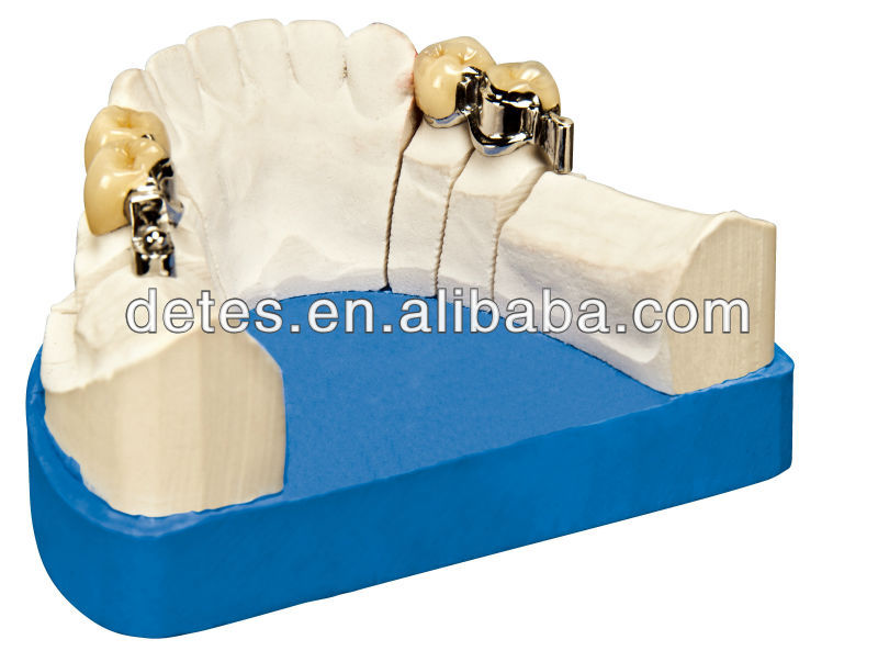 Good quality attachment denture/Precision attachment/Cap button attachment