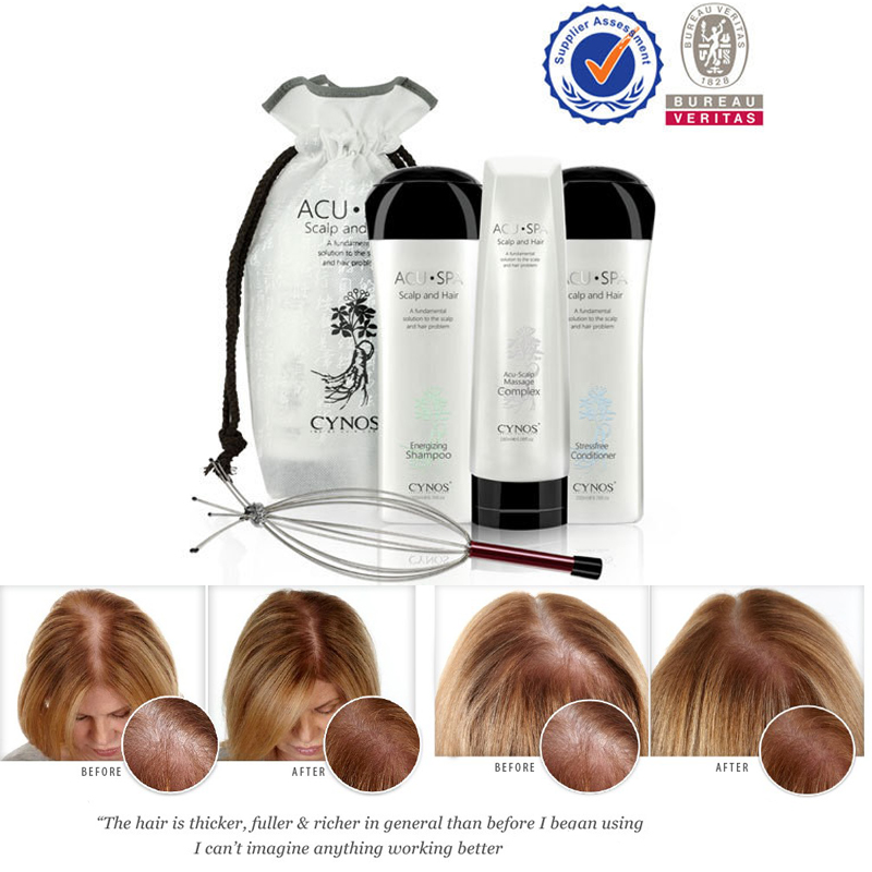 OEM/ODM Sulfate free natural ginseng formula new hair loss treatment,new update theory for hair growth
