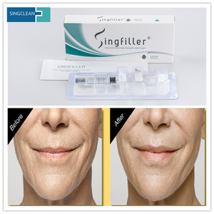 CE Cosmetic Injectables Hyaluronic Acid for Plastic Surgery