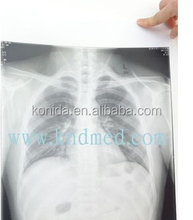 best sellinmg konida industrial x-ray film kodak film