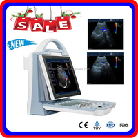 MSLCU23Z CE approved portable doppler ultrasound low price
