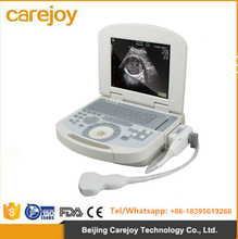 CE ISO approved Obstetrics Gynecology Urology Cardiology Medical used portable ultrasound scanner machine