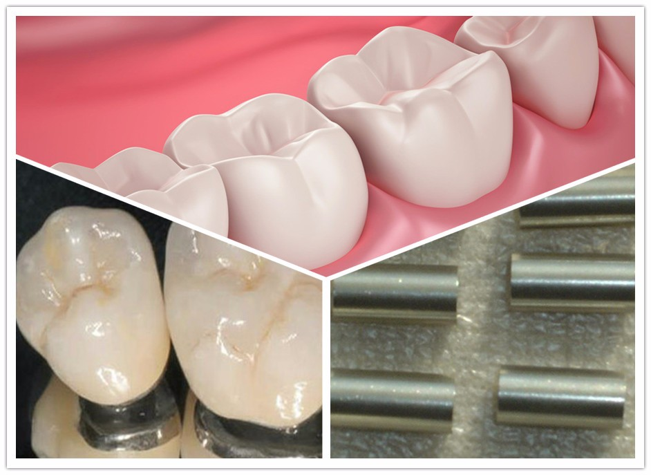 Chinese New material stellite cobalt chromium dental alloy