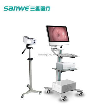 Sanwe Digital Electric Colposcope,Sanwe Video Colposcope,Sanwe Colposcope