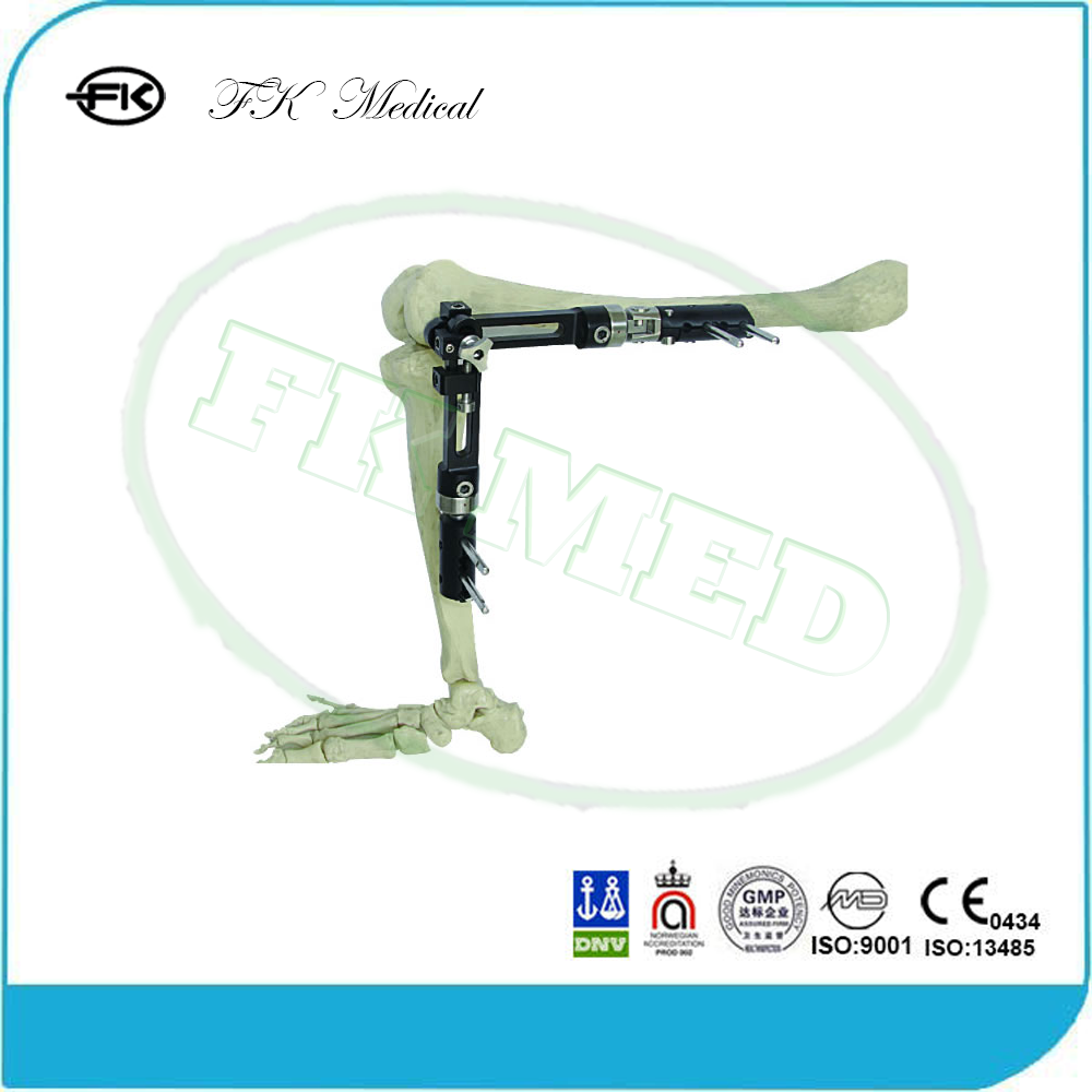 Orthopaedic surgery knee spanning external fixator