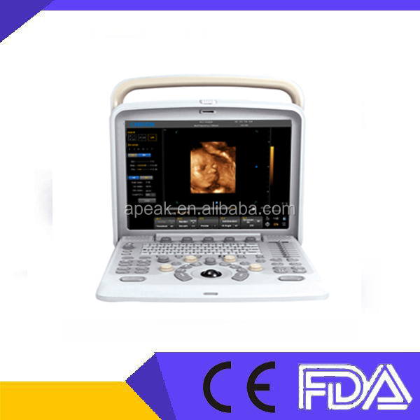 Top Selling !!! Best Price Chison Q9 Digital Portable Ultrasound Machine FDA CE approved in MSK,OB/GYN,Abdomen Application