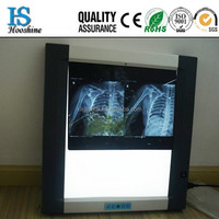 X-ray Scanner Medical X-ray Film Viewer