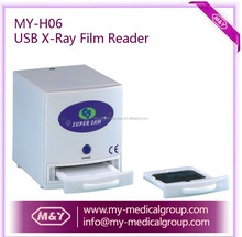 USB Dental X Ray Film Reader/Viewer/Scanner