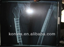 medical mri equipment,medical kodak film,medical imaging film ct film mri