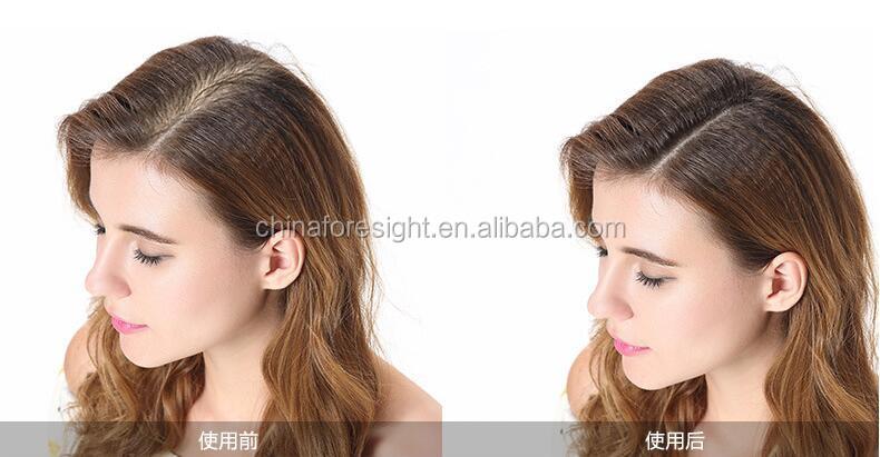 2017 hot selling hair fibers to cure receding hairline50613.jpg