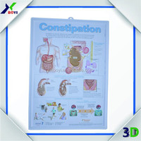 50*70cm 3d medical chart, anatomy emboossed medical wall chart