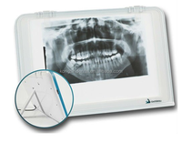 High Quality Medical LED Dental X Ray Film Viewer