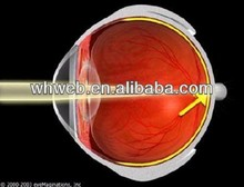 China Contact lens for amblyopic treatment, Effective treatment myopic eyes